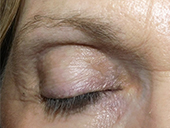 neuLASH PROFESSIONAL by Skin Research Professional Before Image