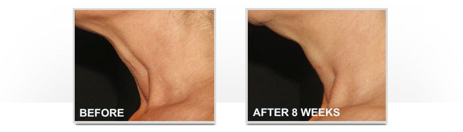 Before and After Neostrata Triple Firming Neck Cream Image 1