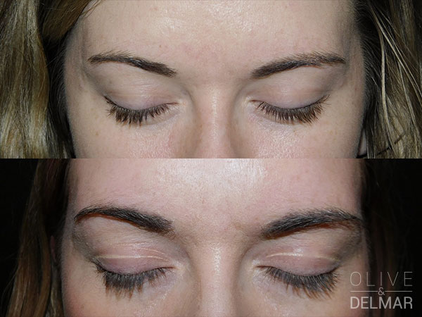 neuBROW PROFESSIONAL™ Before and After image.