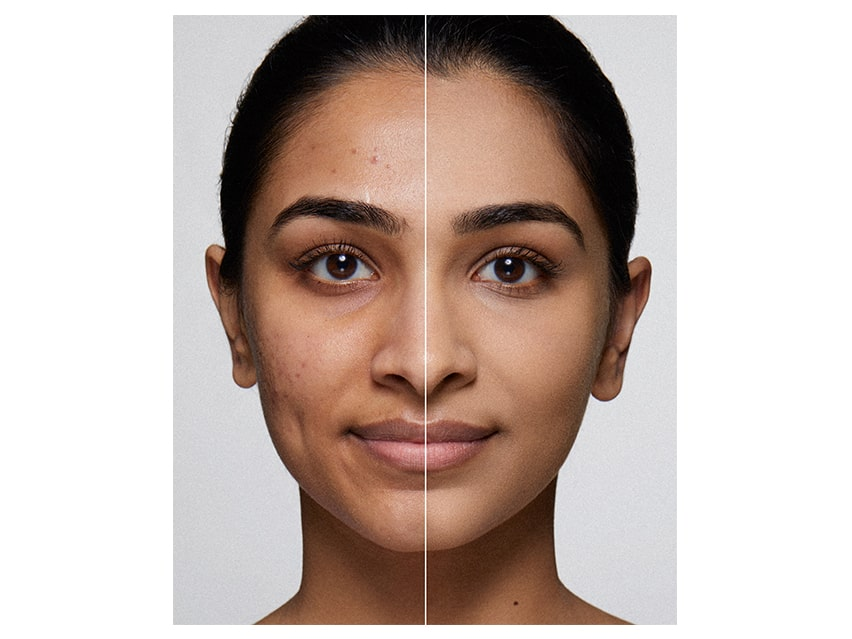 Dermablend Cover Cream Before and After.