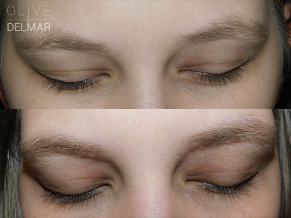 neuLASH PROFESSIONAL™ & neuBROW PROFESSIONAL™ Before and After image.