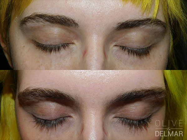 neuLASH PROFESSIONAL™ Before and After image.