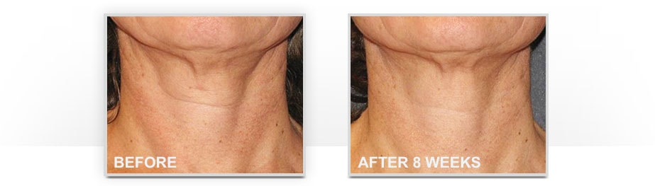 Before and After Neostrata Triple Firming Neck Cream Image 3