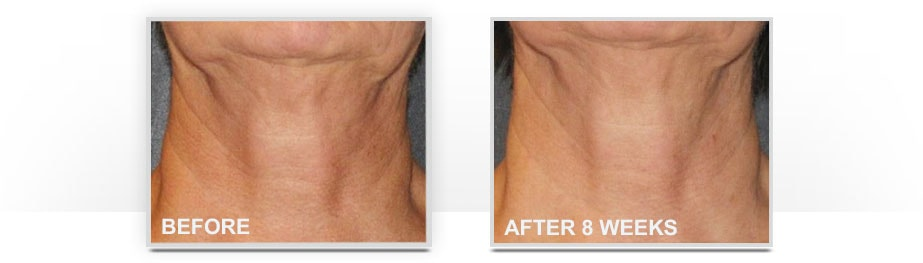 Before and After Neostrata Triple Firming Neck Cream Image 4